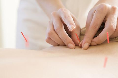 低周波鍼置鍼療法
